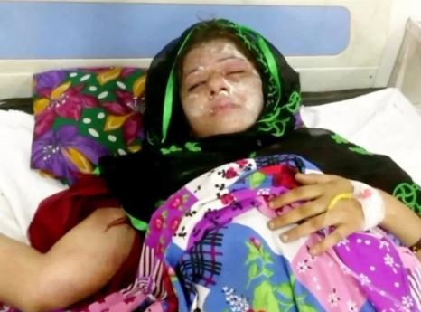 Indian husband ?pours acid on sleeping wife because she gave birth to daughters and he wanted boys?