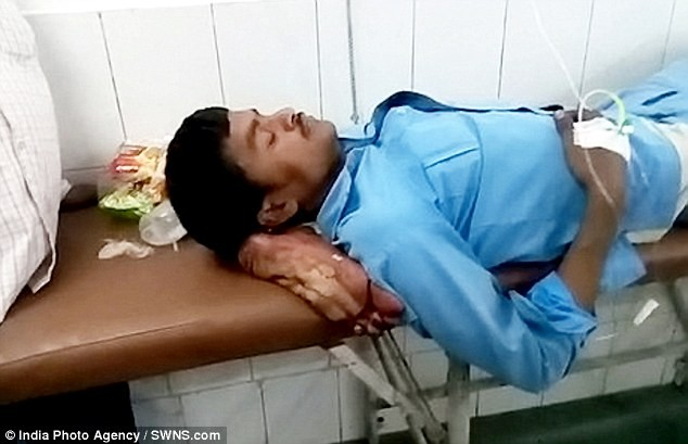 Outrage as bus crash victim who had his foot amputated is forced to use it a pillow in Indian hospital (Graphic Photos/ Video)