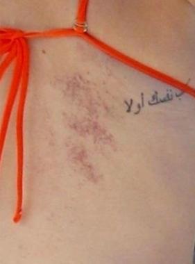 Selena Gomez photographed wearing bikini that displayed her surgery scars