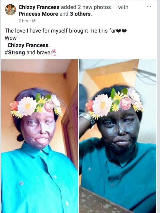 """The love I have for myself brought me this far"" - Nigerian burn survivor"