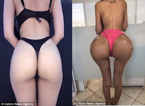 25-year-old lady who spent ?180M on surgery to look like Kim Kardashian, poses naked to show off the results of her transformation (Photos)