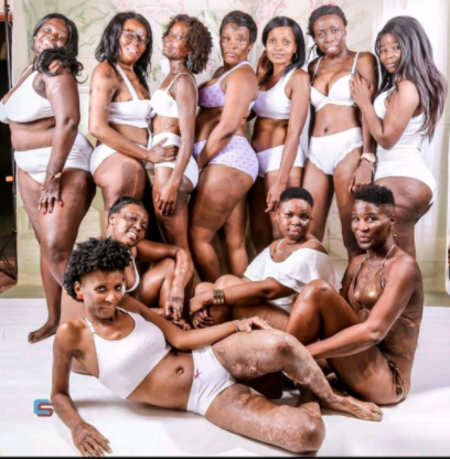 11 female burn survivors come together for a beautiful photoshoot