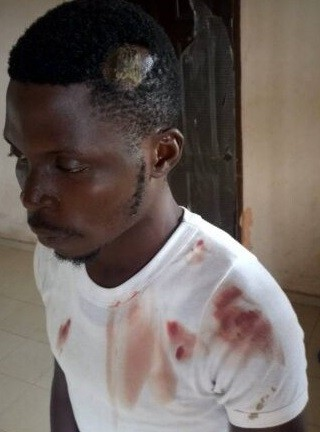 Corps member allegedly severely beaten by a soldier in Edo State