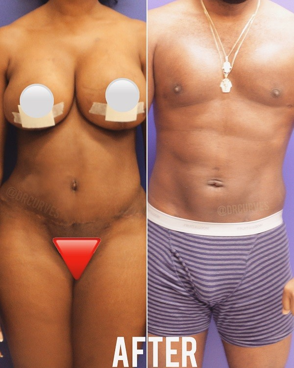 Relationship goals! Cute Couple get plastic surgery together (Photos) +18