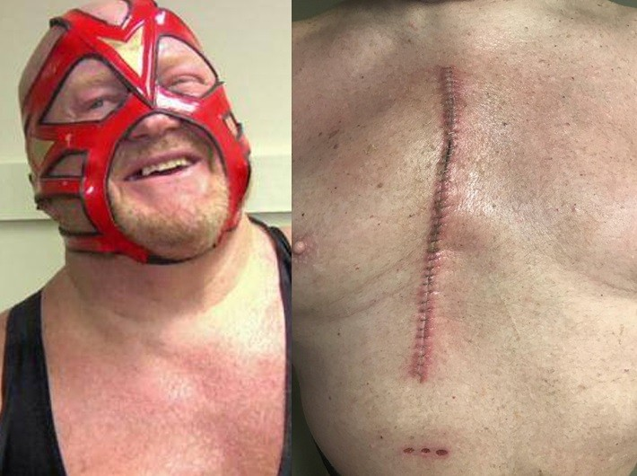 WWE Legend Big Van Vader Shows Off His Large Scar After Undergoing Successful Open-heart Surgery