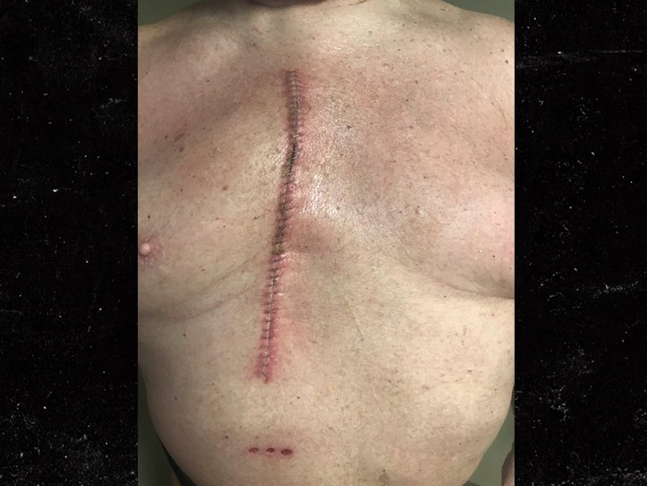 WWE legend Big Van Vader shows off his scar after undergoing successful open-heart surgery (Photo)