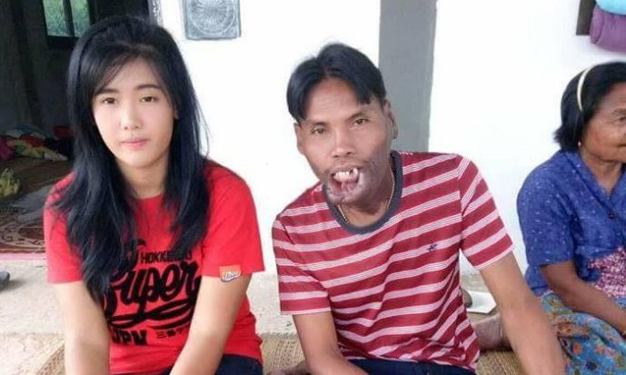 True love? Pretty 21-year-old woman marries poor, older man with facial deformity
