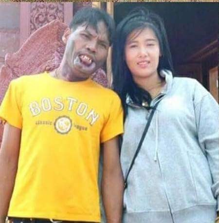 Thai lady who married older man with facial deformity pecks him in new photo