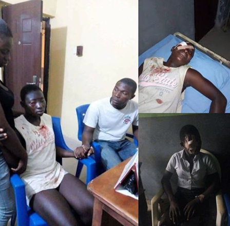 Graphic Photo: Secondary school?student stabs classmate in the eye for refusing to join cult