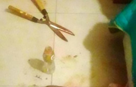 Angry woman cuts off boyfriend?s penis with gardening scissors for leaking their sex tape