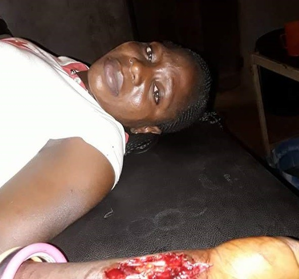 Graphic: Newly married young lady severely injured, one passenger killed as Fulani herdsmen attack vehicle in Benue