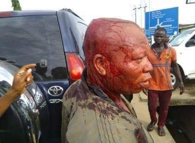APC Chairman in Akwa Ibom brutally beaten by aggrieved youths