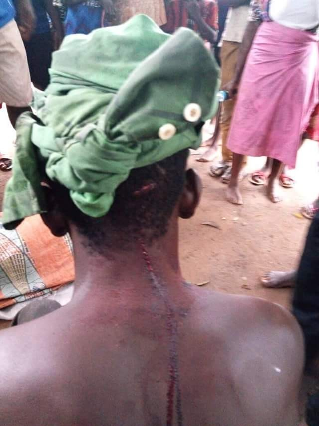 Fulani herdsmen reportedly attack Guma, Benue State, leave scores injured
