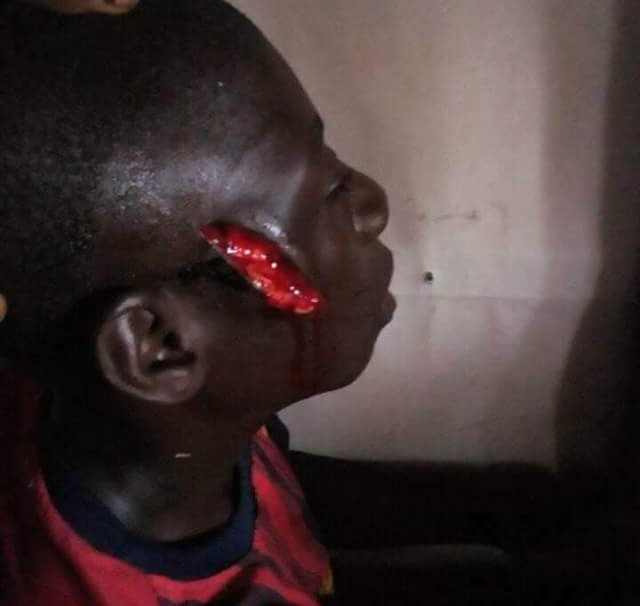 15-year-old girl stabs boy, 14, during altercation in Bayelsa (graphic photos)
