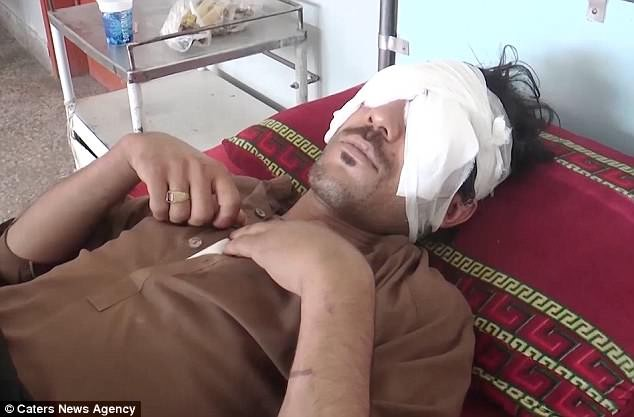 Pakistani man, 22, has his eyes gouged out with spoon by his father and brothers for wanting to marry a girl of his choice (Graphic Photos/Video)