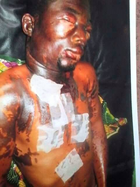 Married man pours acid on his niece for ending their sexual relationship (photos)