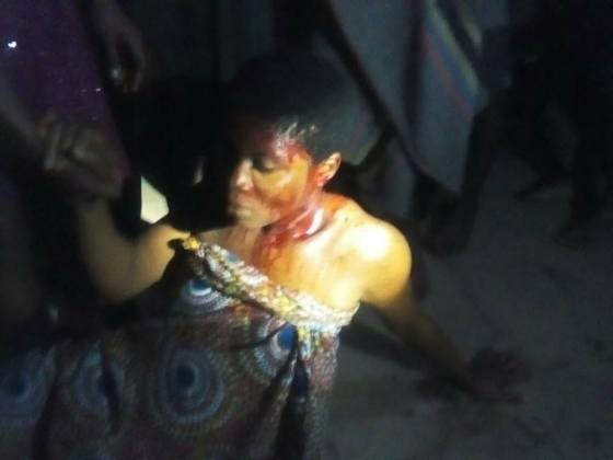 Photos: Many students injured as suspected rapists attack all girls secondary school in Abia
