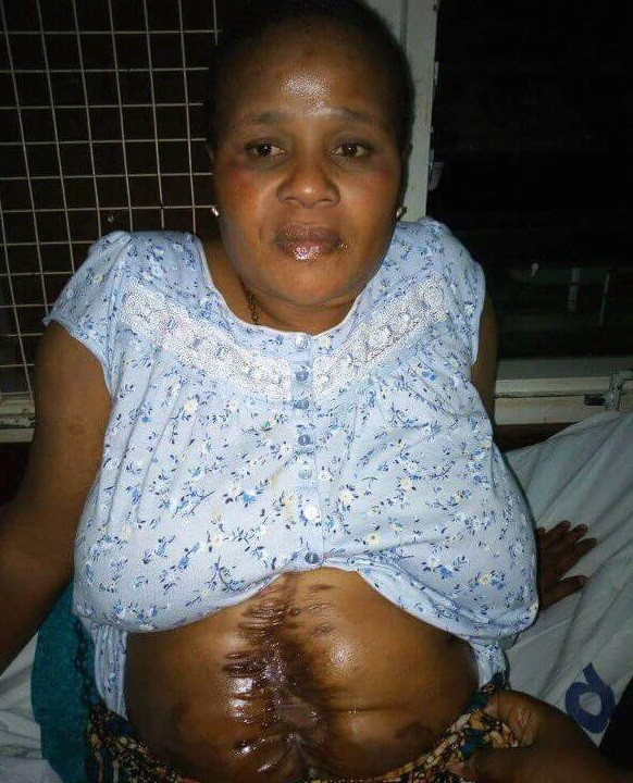 Man shares photo of Nigerian woman set to undergo 22nd operation on the stomach, preaches to people who find it hard to praise God