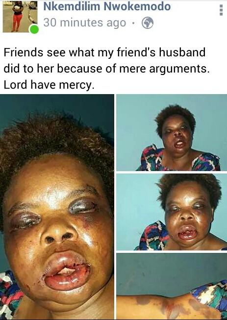 Man beats wife to a pulp following disagreement (graphic photos)