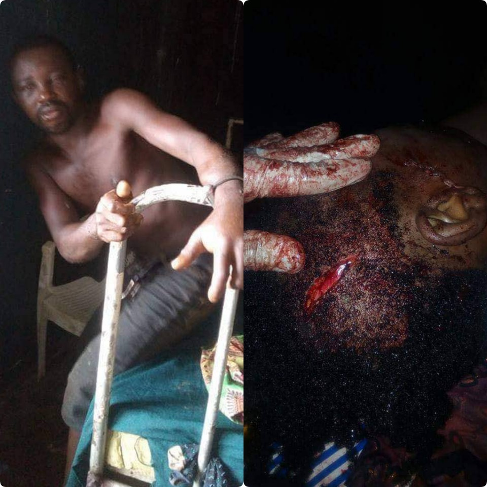 Update: Police arrest man who brutally attacked his wife, mother-in-law in Edo State