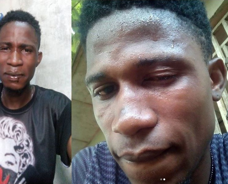 Nigerian blogger, Anthony Abraham, allegedly beaten up by SARS officers in Lagos (Photos)