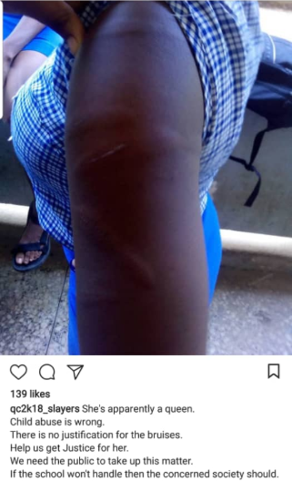Queens college student brutally beaten and bruised by teacher because she knelt on his handkerchief (photo)