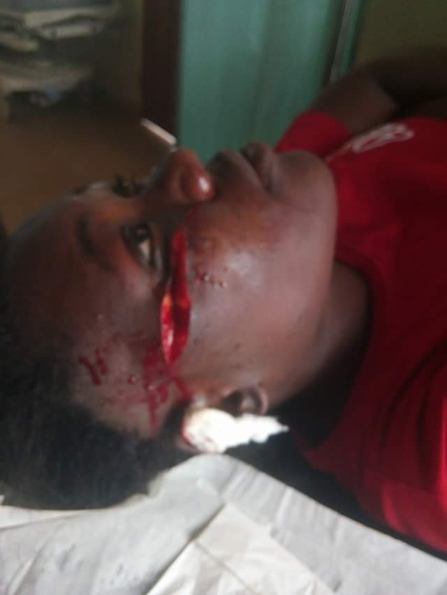 """""""I regret loving you like my sister"""" - Nigerian lady cries out after her best friend slashed her face with razor blade"""