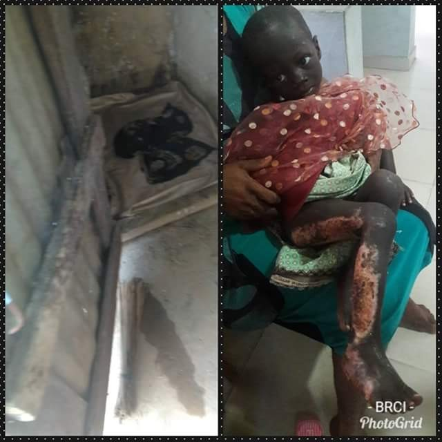 Uncle ties his malnourished 2-year-old niece to a tree and sets her on fire in Cross River state