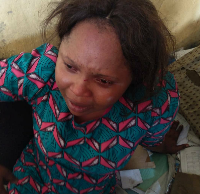 Graphic photos:?Housewife arrested for scalding?maid with hot water for sleeping on her couch