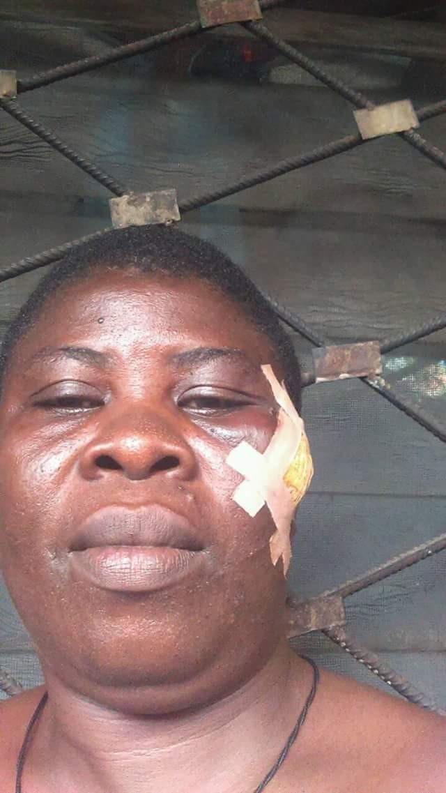 Widow allegedly beaten up by her in-laws in Anambra, her house vandalized (photos)