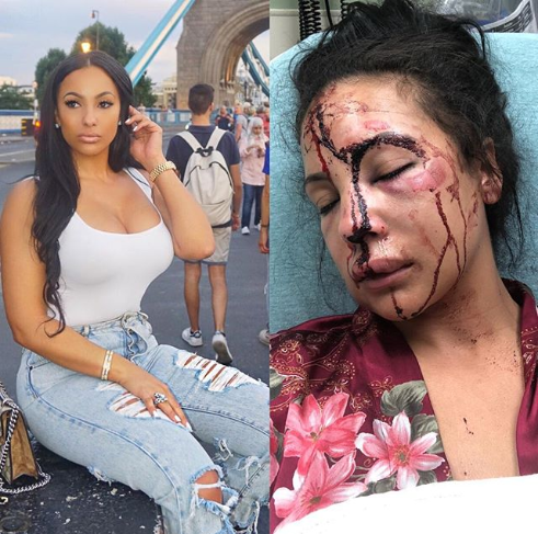 NFL star LeSean McCoy accused of brutally beating girlfriend as horrific photo of her bloodied face is released