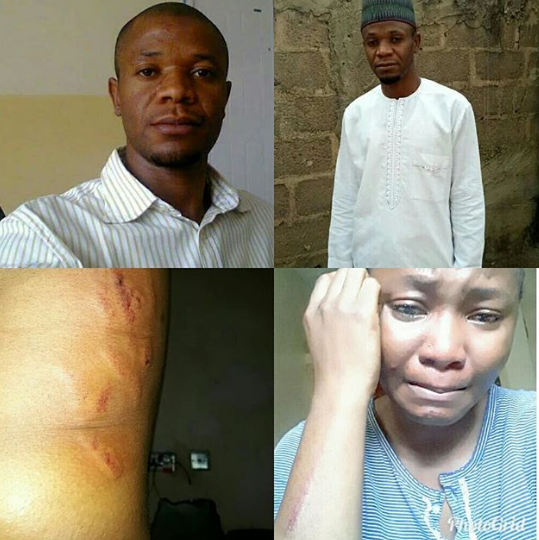 Fatherless lady cries out after her uncle brutalized her in Abuja (photos)