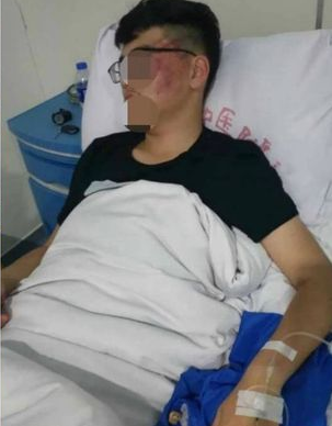 Student lands in hospital with a concussion after being slapped hard by his Chinese teacher
