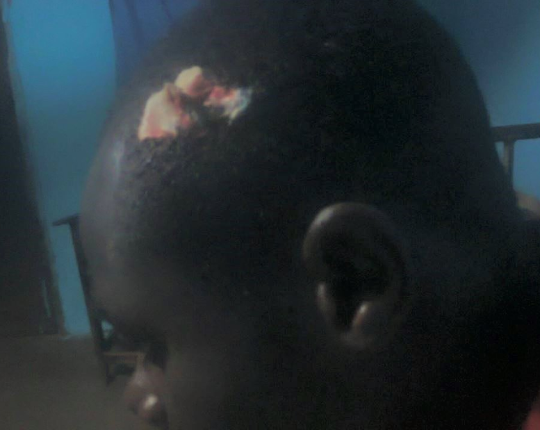 Young Nigerian accuses his father of breaking his head with a hammer because he operated his phone at night
