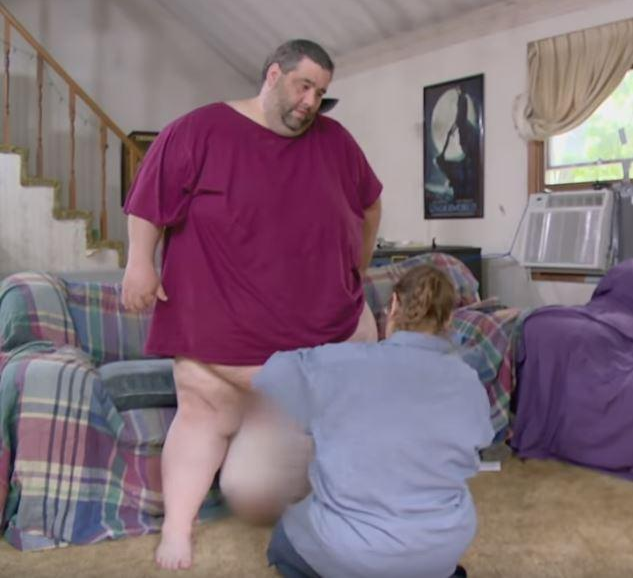 Man with swollen testicles reveals he couldn