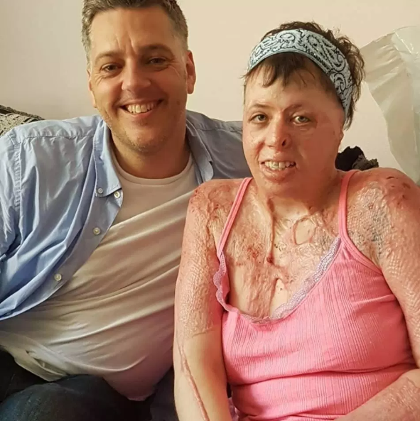 Woman set on fire by neighbour describes how she died and came back to life