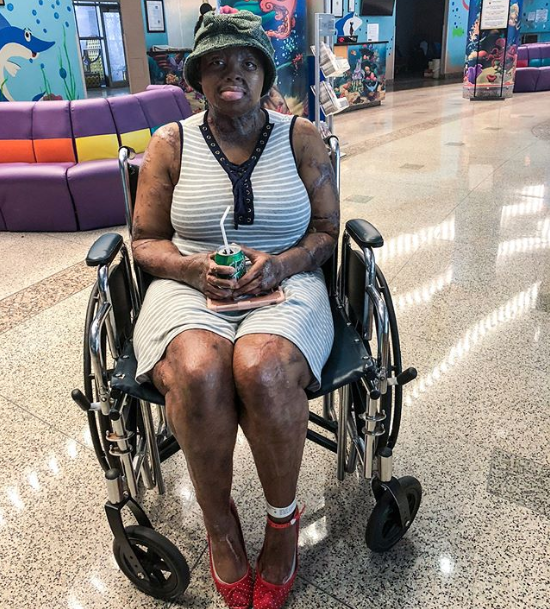 Sosoliso plane crash survivor, Kechi Okwuchi undergoes surgery