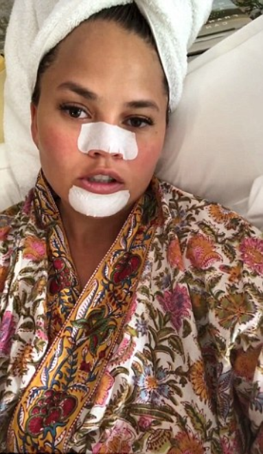 Chrissy Teigen hilariously shares unflattering double chin selfie