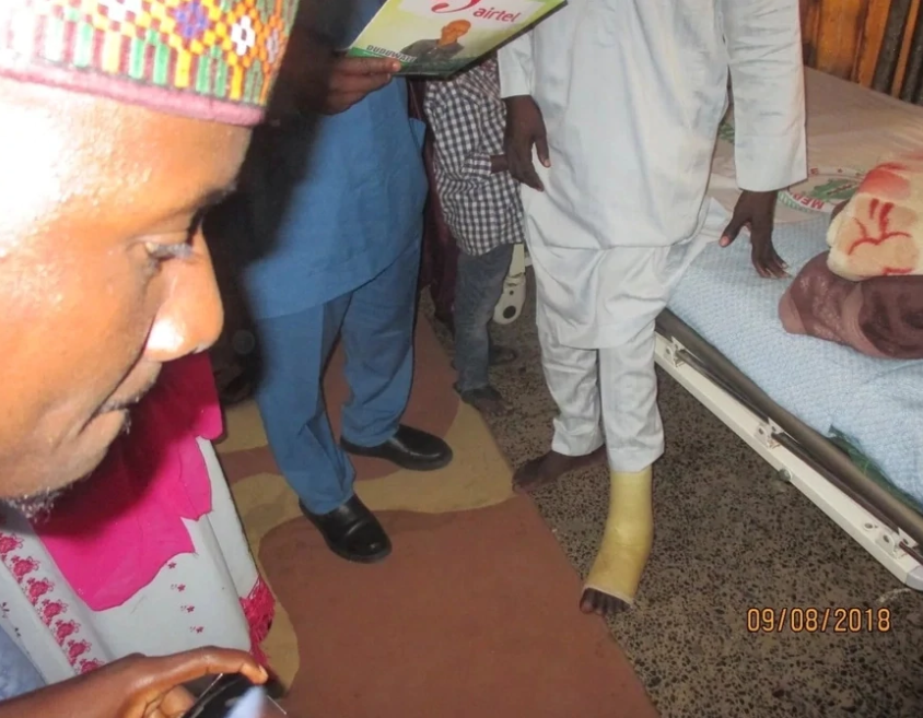 Health minister visits man who developed leg injury years after trekking from Yola to Abuja to honor Buhari