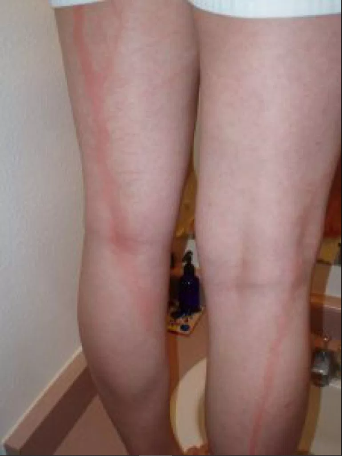 People hit by lightning reveal their scars and it looks really weird