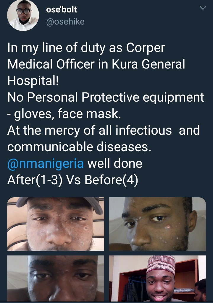 Corper serving in Kano state raises alarm over the dilapidated state of general hospital
