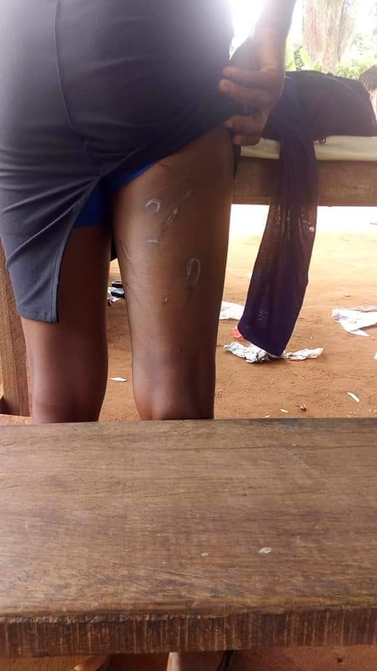 Photos: Edo school proprietor allegedly unleashes her dog on her former staff