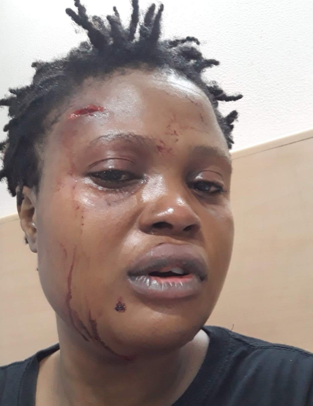 Nigerian woman in hospital after alleged racially motivated attack in India