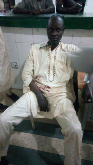 Kano man appears calm as he's rushed to the hospital with a large nail sticking out of his neck (photos)