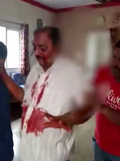 Horror as 42-year-old man gouges out his father