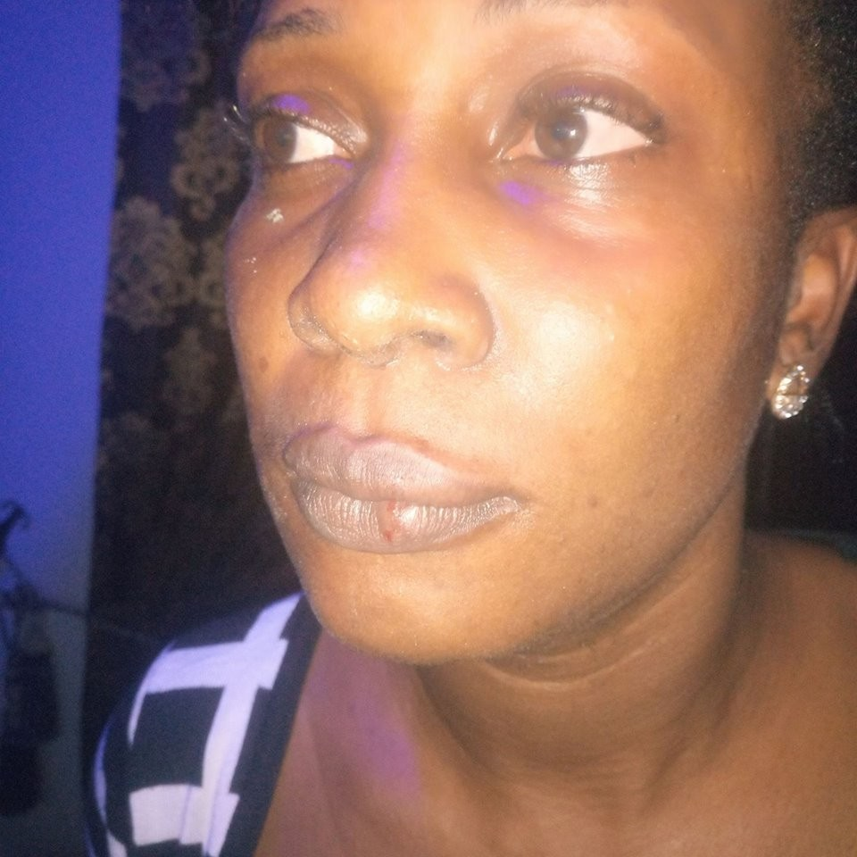 Photo: Lady cries out for justice after an Ebonyi local government chairman allegedly sent his thugs to beat her up for rejecting his sexual advances