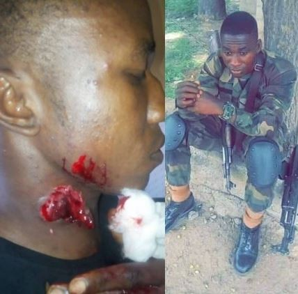 Nigerian Army officer called out for allegedly stabbing a man in the neck in Lagos (Graphic photos)