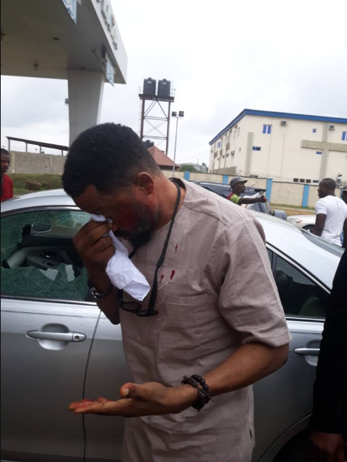 Security expert badly injured when police officers opened fire at Ikeja Airport toll gate accuses the police of neglect
