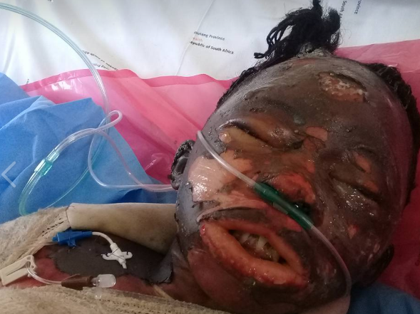 South African lady set on fire by her boyfriend dies after days of agony (graphic photos)