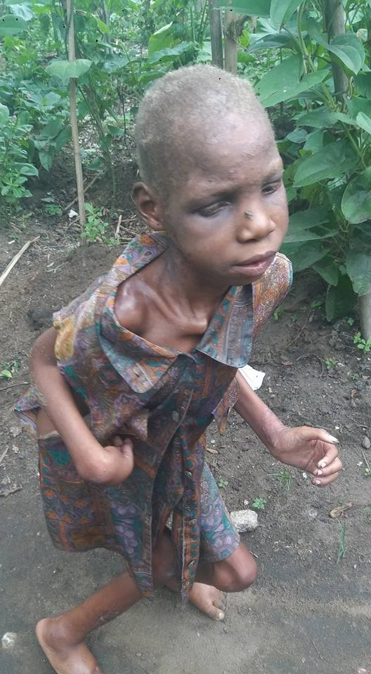 Photos: Akwa Ibom-based optician rescues little girl with Cerebal palsy, left to die in a pit toilet by her mother